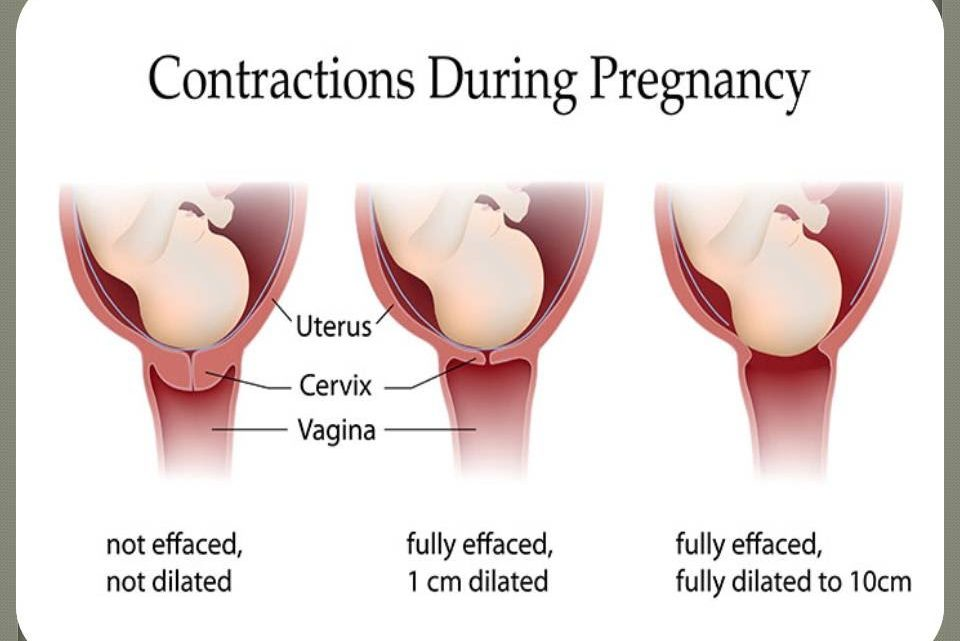 What are Labor Contractions?