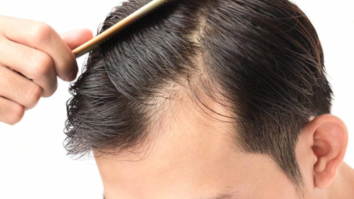 Tips to cope up with hair loss